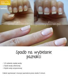 wybielanie Beauty Skin, Health And Beauty, Fashion And Beauty Tips, Hacks Diy, Nail Care, Pretty Nails, Skin Care Tips, Manicure, Beauty Hacks