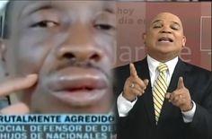 """Marino Zapete; """"Los Nazis De Este País Le dieron Una Brutal Golpiza al Abogado Genaro Del Rincon"""""""