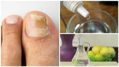 Nail fungus, an infection also known as onychomycosis, is caused by . Snoring Remedies, Psoriasis Remedies, Essential Oils For Psoriasis, Psoriasis On Face, Plaque Psoriasis, Bra Hacks, Nail Fungus, Natural Solutions, Crunches