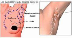 comment-prevenir-le-cancer-du-sein-grace-a-une-detoxification-des-aisselles