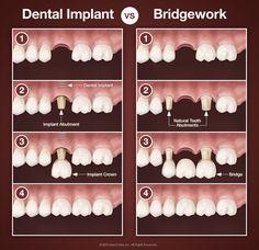 Dental implants vs bridgework.
