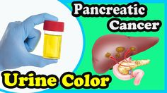 7 Pancreatic Cancer Common Symptoms