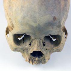 UB_Skull1_4.jpg