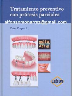 LIBROS: TRATAMIENTO PREVENTIVO CON PRÓTESIS PARCIALES Libr...