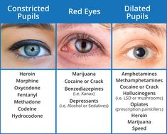 Drugs Cause Red Eyes and Dilated Pupils . Medical Facts, Medical Information, Dilated Pupils, Mental Health Nursing, Nursing School Notes, Pharmacology Nursing, Medical Anatomy, Nursing Tips, Medical Field