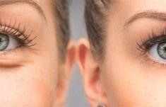 Το καλύτερο λάδι ματιών για τις βαθιές ρυτίδες. | Μυστικά ομορφιάς | mystikaomorfias.gr Homemade Cosmetics, Leiden, Concealer, Hair, Beauty, Knitting Charts, Tejidos, Helpful Tips, Woman