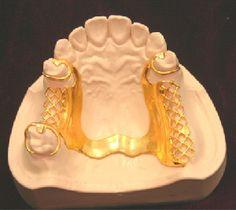 partial-denture-photo