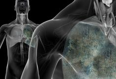 WebMD's pictures show who's at risk for lung cancer, symptoms, tests, and promising new treatments.