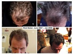 ageLOC Galvanic Spa II and nutriol hair treatment gave this man his hair back. 7 mos. There is hair conductor attachment that is used for the scalp.