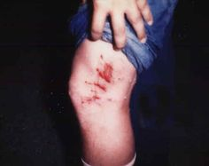 Inference: What do you think caused this injury? What makes you think so?