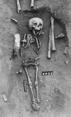 Oldest Confirmed Case Of Down's Syndrome Suggests No Stigma In Death - Biology, Medicine, Anatomy and Physiology