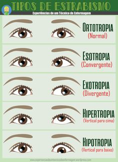 Eye Strabismus - All About Health Medicine Notes, Medicine Student, Eye Anatomy, Eye Facts, Nursing School Notes, Vision Therapy, Medical Anatomy, Med Student, Medical Science
