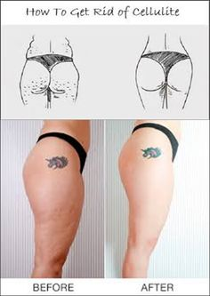 Cottage cheese should only be a reference for the actual food. No woman should ever have to worry about her thighs looking like the dimpled, lumpy food. Unfortunately it happens — even to the most …