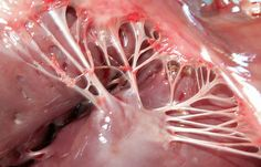 """The chordae tendineae, or """"heart strings"""", are cord-like tendons that connect the papillary muscle to the tricuspid valve and the mitral valve in the heart. During severe emotional trauma they can actually snap and break causing a """"broken heart"""" that can lead to other health complications."""