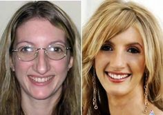 24 Extreme Makeovers You Wont Believe Aren't Photoshopped