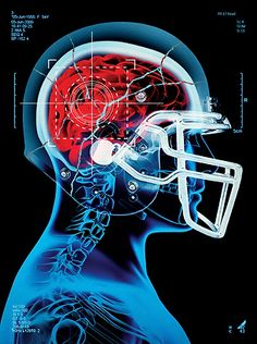 This Is Your Brain on Football The new science of concussions proves that high school football is America's most dangerous game   This is Your Brain on Football Read more: http://www.rollingstone.com/culture/news/this-is-your-brain-on-football-20130131#ixzz2yAGLRN7l