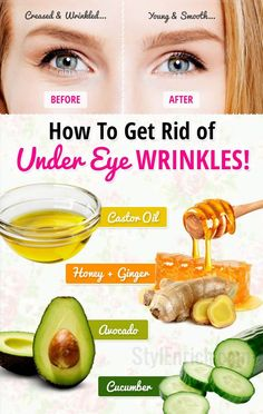 Anti aging skin care tips and DIY homemade recipes to look 10 years younger and get rid of wrinkles. Get radiant and wrinkle free skin with effective skin care products and hacks. Under Eye Creases, Under Eye Wrinkles, Prevent Wrinkles, Creme Anti Age, Anti Aging Cream, Anti Aging Tips, Anti Aging Skin Care, Belleza Diy, Looks Party