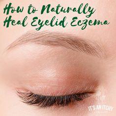 eczema remedies for kids ; eczema remedies for babies ; eczema remedies for adults ; eczema remedies for face ; eczema remedies for kids homemade ; eczema remedies for kids children Swollen Eyelids Remedy, Itchy Eyelids, Eczema On Eyelids, Dry Flaky Eyelids, Dry Skin Around Eyes, Eczema Around Eyes, Eye Eczema, Facial Eczema, Allergies