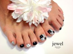 Black and white toenails