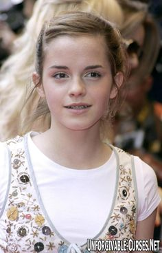 Young Emma Watson with braces. ハーマイオニーも矯正してました。