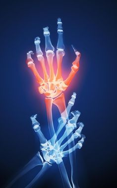 #Arthritis