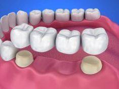 Ha neked is műfogsorod van, erről feltétlenül tudnod kell! Dental Cosmetics, In Cosmetics, Dental Crown Procedure, Dental Bridge Cost, Dentist Near Me, Dental Fillings, Dental Emergency, Dental Veneers, Dental Crowns