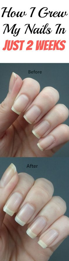 Amazing tips & tricks to grow your nails FAST!