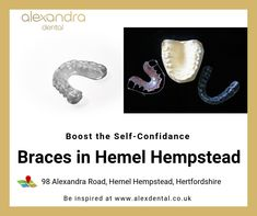 Boost your self-confidence with Invisible Braces. Alexandra Dental Clinic offers various types of orthodontics braces in Hemel Hempstead to fix your crooked and misaligned teeth and giving back your natural smile. Misaligned Teeth, Invisible Braces, Hemel Hempstead, Orthodontics, Self Confidence, Dental, Clinic, Smile