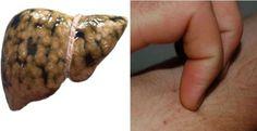 Les signe qui indiquent que vous avez une cirrhose et ce que vous pouvez faire pour y remédier