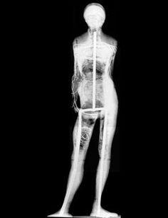 X-ray of Degas sculpture showing the armature  https://picasaweb.google.com/116785872448386935525/DrawingGesturalStudies