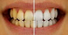 """Traditional whitening practices have proven to be quite harmful to the longevity of our teeth. Dental specialist Linda Greenwall has thoroughlyinvestigatedthe harmful use of teeth whitening treatments, especially ones thatincludechlorine dioxide, and argues""""these chlorine dioxide treatments are advertised as safe for teeth. It is certainly not thecase."""" Itremainsdifficult for people to find an effective and […]"""