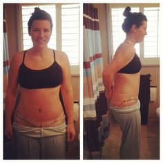 Day 12: Post-Op Update {Abdominoplasty} Day 8 #abdominoplasty #tummytuck