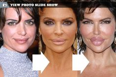 Lisa Rinna plastic surgery... please tell me that last picture is fake.