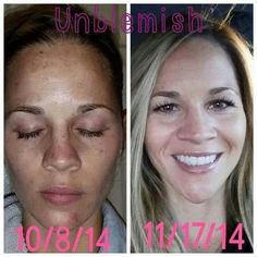 Are you ready to heal your breakouts for good? #acne #rodanandfields #breakouts