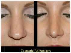 Dr. Haddad is celebrating 40 years of performing plastic surgery of the nose. After performing more than 8000 cases we are offering the price of basic rhinoplasty for 4,999.00.    Please schedule your complimentary consultation by calling (949)720-0505.  offer ends October 1st 2013.