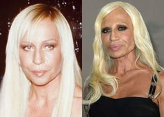 14 Horrifying Cases of Celeb Plastic Surgery - It's no secret that celebrities tend to be vain, often taking extreme measures to extend their time in the spotlight. Here are 13 of the most horrifying examples of celeb plastic surgery gone very, VERY wrong.