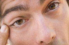Duracion De Las Moscas Volantes en Los Ojos