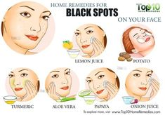 Black Spots On Face, Dark Spots, Black Marks On Face, Brown Spots, Top 10 Home Remedies, Natural Remedies, Black Skin Care, Salud Natural, Face Scrub Homemade