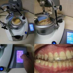#occlusalsplint #bruksizm #erkodent #clear #dentalphotography #bruxism #dentaltechnician #nightguard #dentistry #hard #soft #hardandsoft #dentari #odontotecnico #bruxismo #odontologia #tecnicodental #zahntechnik #turkey by hakan_liberta Our General Dentistry Page: http://www.myimagedental.com/services/general-dentistry/ Google My Business: https://plus.google.com/ImageDentalStockton/about Our Yelp Page: http://www.yelp.com/biz/image-dental-stockton-3 Our Facebook Page…