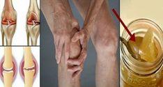 Bolest kloubů (artralgie) nebo také zánět kloubů (artritida) jsou často nepříjemné. Zánět kloubů bývá doprovázen otoky. Jde-li o bolest zánětlivých kloubů, objevují se zejména v oblasti kolen. Tento typ bolesti ovlivňuje vaší každodenní činnost a také kvalitu života. Kolena jsou nejdůležitějšími klouby vlidském těle, protože pomáhají a podporují pohyb nohou a to už při chůzi, …