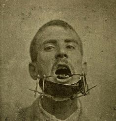 . apparatus to mend a broken jaw, 19th century