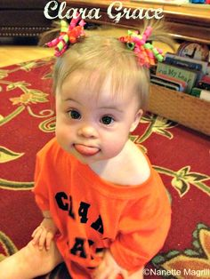 The Many Faces of Down Syndrome Precious Children, Beautiful Children, Down Syndrome Pictures, Baby Pictures, Baby Photos, Cute Kids, Cute Babies, Down Syndrome Baby, Mermaid Artwork