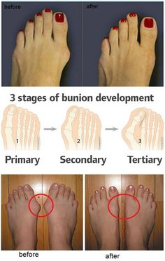 How To Stop & Get Rid Of Bunions - Toronto, Calgary, Edmonton, Montreal, Vancouver, Ottawa, Winnipeg, ON