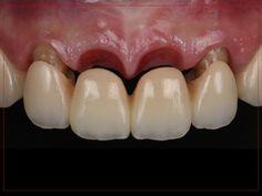 Dental Wallpaper, Teeth Shape, Dental Bridge, Dental Crowns, Brain Waves, Cosmetic Dentistry, Artworks, Smile, Inspiration