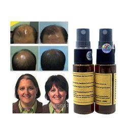 Cepat Pertumbuhan Rambut untuk wanita yuda pilatory rambut pertumbuhan kembali pengobatan Kebotakan anti rambut rontok minyak jenggot tumbuh rambut wajah 2 pcs/set
