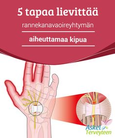 """Causes and Treatment of Carpal Tunnel Learn about the and of carpal syndrome"""""" Carpal Tunnel Surgery, Carpal Tunnel Syndrome, Natural Home Remedies, Insomnia, Allergies, Health Fitness, Workout, Learning, Carpe"