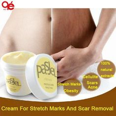 Cream For Stretch Marks And Scar Removal Powerful To Stretch Marks Maternity Skin Body Repair Cream Remove Scar Care Postpartum - Cerkos  - 1
