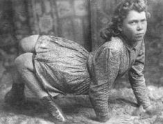 Gallery of Human Freaks | The Circus Sideshows of the late 1800s and early 1900s