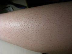 problemes et maladies p maladies de peau