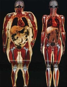 Only 45% of people qualifying as overweight said they'd ever been told that by a physician. Among those with a BMI qualifying them as obese, 66% reported being told by a doctor they were overweight. (via the WSJ)  photo: an MRI of two women, one 250 lbs and the other 120.